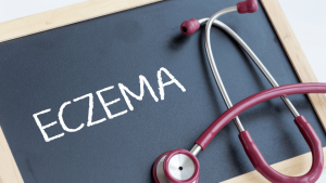 Causes, Types and Treatment of Eczema Disease